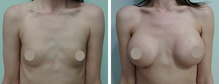 Saline Breast Augmentation Patient 18