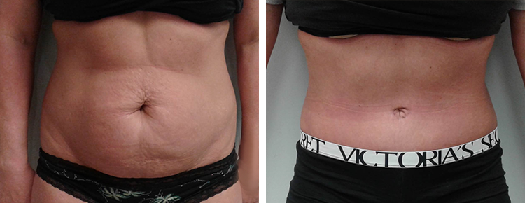 Tummy Tuck Patient 43